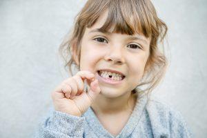 Caída de los dientes temporales